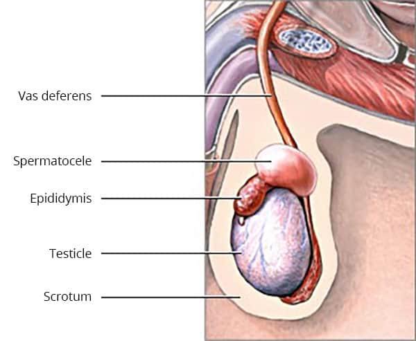 Dr Tim Nathan Urology | Epididymal Cyst Excision