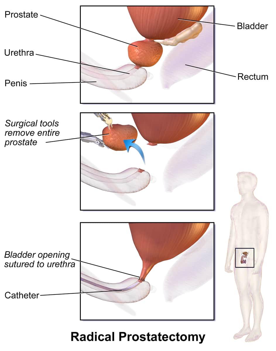 Dr Tim Nathan Urology Robotic Radical Prostatectomy